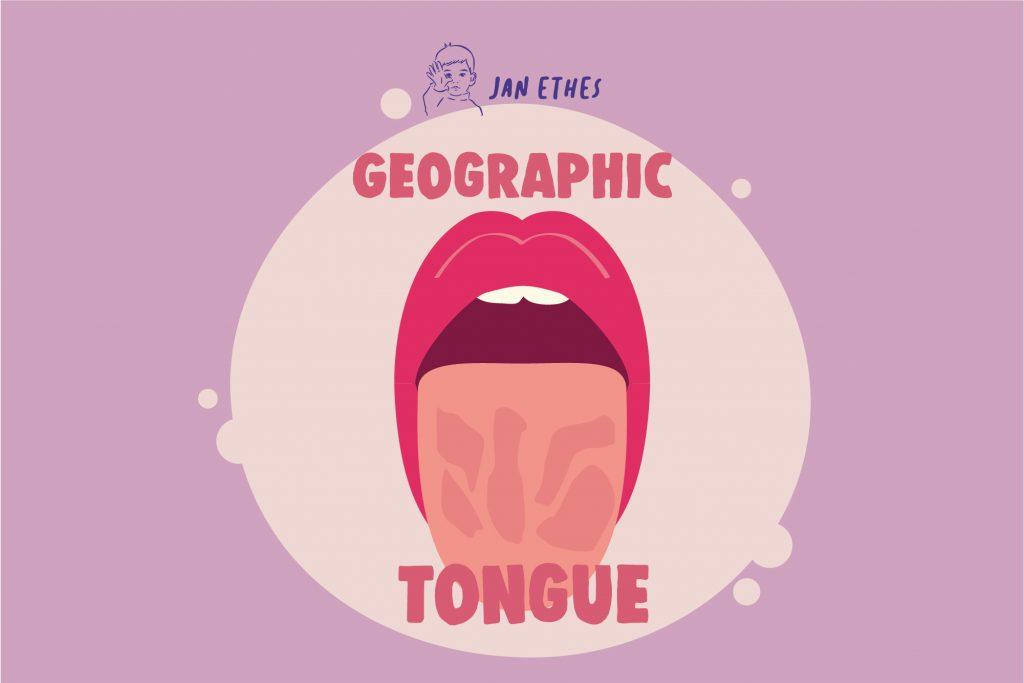 Geographic Tongue, Lidah Bertekstur Seperti Peta